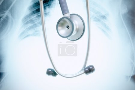 Stethoscope on a background of X-ray image.