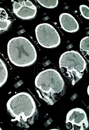 CT image of the brain