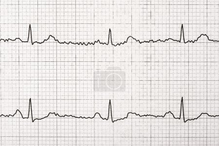 Normal Electrocardiogram Record On Paper...