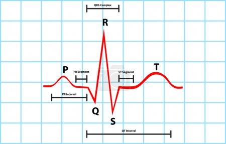 Normal Atrial And Ventricular Depolarization With Electrocardiogram Description