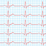 Heart Normal Sinus Rhythm On Electrocardiogram Rec...
