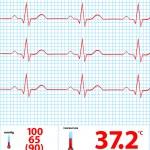 Modern Electrocardiogram Monitor Display Vector Il...