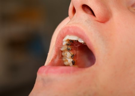 Close up of a lingual braces at a dental clinic...