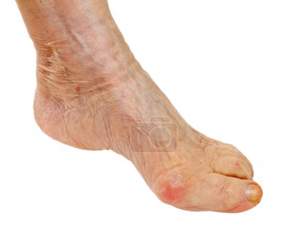 Elderly feet