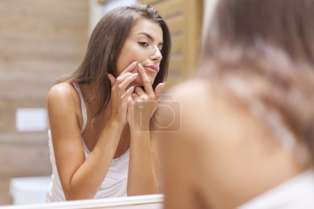 Photo for Young woman has problems with skin on the face - Royalty Free Image