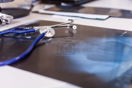 X-ray and stethoscope