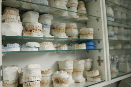 dental gypsum models