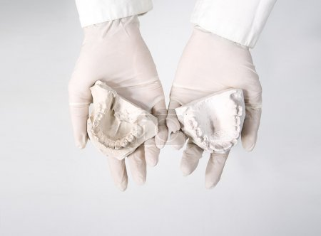 Photo for Hands holding dental gypsum models, dental concept - Royalty Free Image
