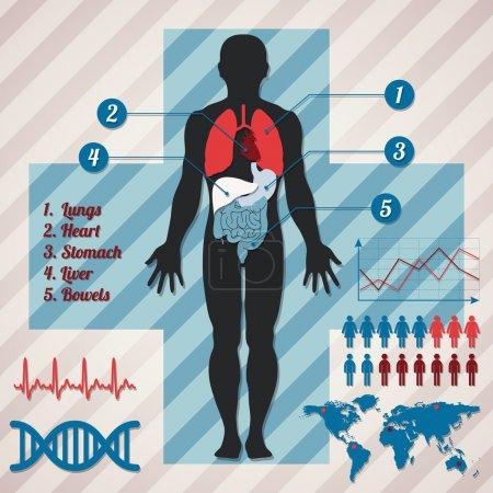 Illustration pour Infographie médicale. Illustration vectorielle - image libre de droit