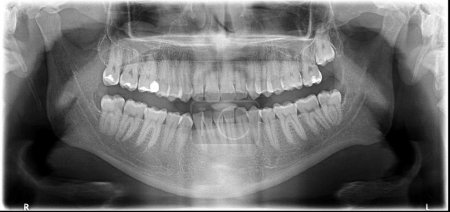 Jaw X-Ray