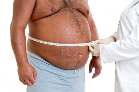 Large male patient belly with doctor