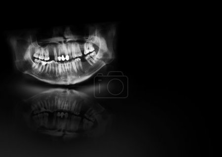 X-ray teeth jaw human cranium. Panoramic negative photo facial image of mouth young adult male. Medical design element sample blank template horizontal paper size A4. See more image in my gallery