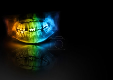 Color x-ray teeth jaw human cranium. Panoramic negative photo facial image of mouth young adult male. Medical design element sample blank template horizontal paper size A4.