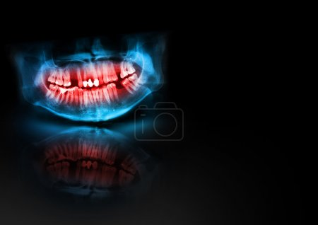 Blue and red x-ray teeth jaw skull with glow, shadow and reflection on black background. Panoramic negative image of facial man. Medical design element sample blank template horizontal paper size A4