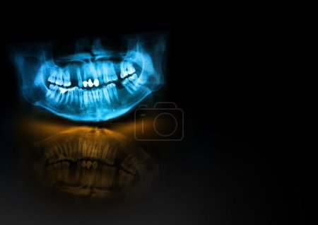 Blue x-ray teeth jaw skull with orange glow, shadow and reflection on black background. Panoramic negative image of facial man. Medical design element sample blank template horizontal paper size A4