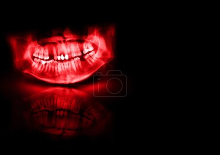 Black and red x-ray teeth scan mandible.