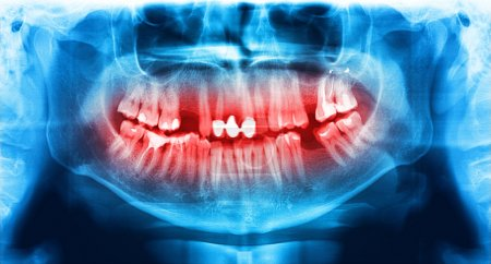Blue and red x-ray teeth scan mandible.