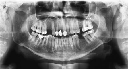 Black x-ray teeth scan mandible.