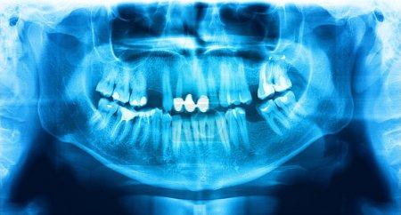Blue red x-ray teeth scan mandible.