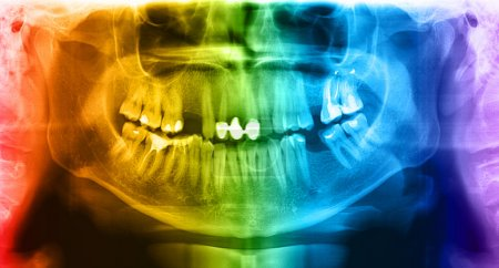 Multicolored x-ray teeth scan mandible.