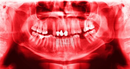 red x-ray teeth scan mandible.