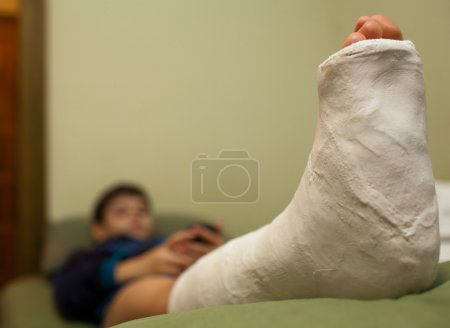 Little boy with broken leg in plaster cast lying o...