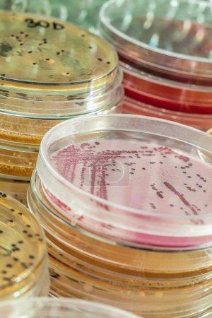 Bacterias testing