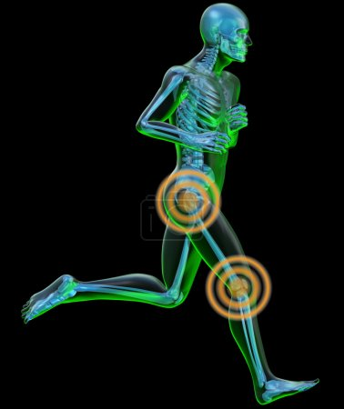 Side view of a running man seen by x-ray with pain in the leg