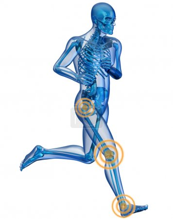Running man seen by x-ray with pain in the leg
