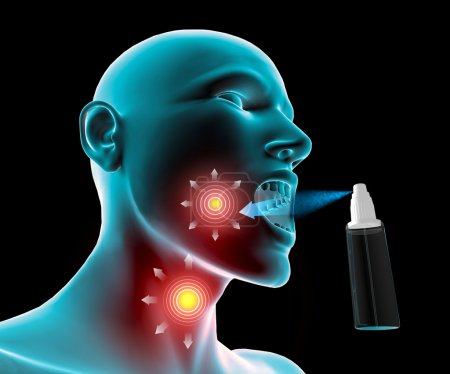 Sore throat inflammation