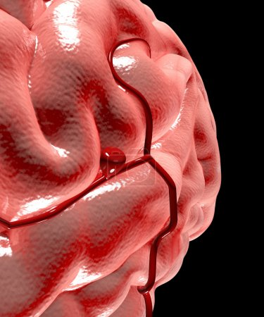 Cerebral aneurysm, brain head