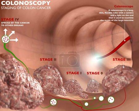 Colonoscopy digestive system