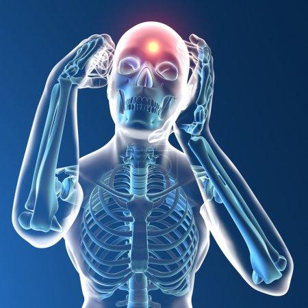 Photo pour Radiographie humaine avec maux de tête sur fond bleu foncé - image libre de droit