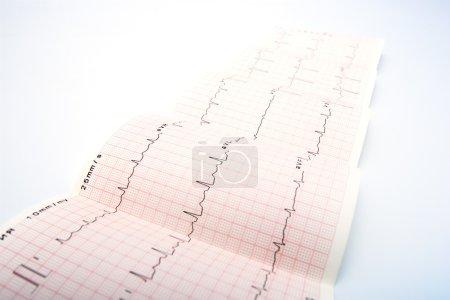 Electrocardiogram, waveform from EKG test, showing...