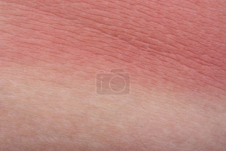 Example sunburn skin