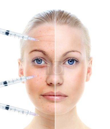 Photo pour Le portrait de belle femme avec une seringue isolé sur blanc, avant et après le traitement de beauté. - image libre de droit