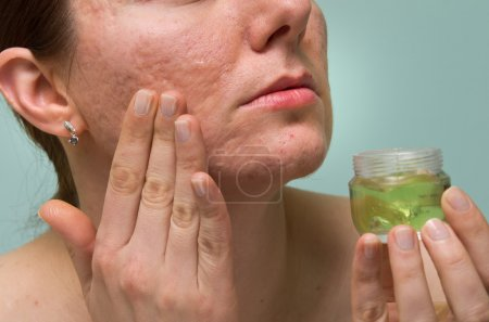 Girl applying aloe gel to problematic skin with ac...