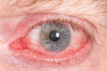 Photo pour Gros plan de grande ouverte rouge et irrité l'oeil humain - image libre de droit