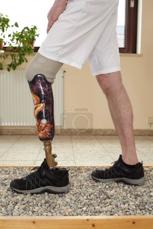 Photo for Male prosthesis wearer learning to transfer his weight on uneven surfaces in a special parcour or interior area where surfaces have been laid out to simulate realistic environmental situations - Royalty Free Image