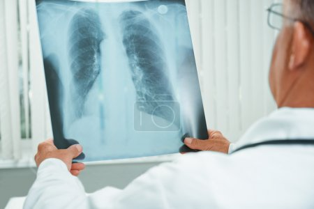 Doctor examines x-ray image