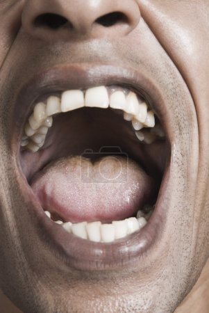 Man's mouth wide open