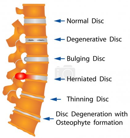 Spine conditions. Degenerative Disc. Bulging Disc....