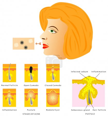 Formation of skin acne