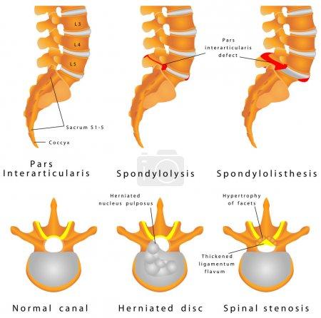 Ilustración de Fractura de la espina. espondilolisis (Espondilolistesis) es un defecto en el anillo óseo formado por la columna vertebral. desplazamiento de una vértebra lumbar, que ocurre más comúnmente después de una rotura o fractura - Imagen libre de derechos