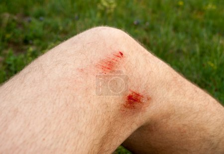 scratches on the knee
