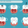 Root canal treatment...