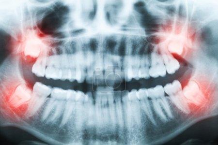 Photo pour Gros plan de l'image radiographique des dents et de la bouche avec les quatre molaires touchées verticalement et toujours pas cultivées et visibles dans l'os de la mâchoire. Cavités remplies visibles. Molaires touchées (dents de sagesse, dents numéro 8) sur le côté droit du visage (image gauche) sho - image libre de droit