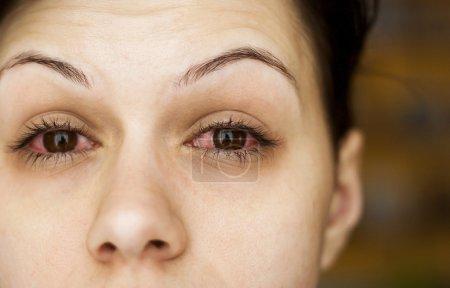 Photo pour Malade des yeux femme - image libre de droit