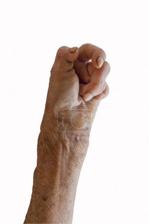 Linke Hand eines Leprakranken