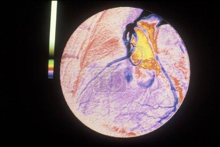 Aorta-coronary bypass